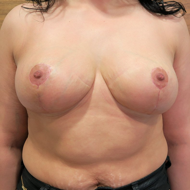 Breast Lift – no implants