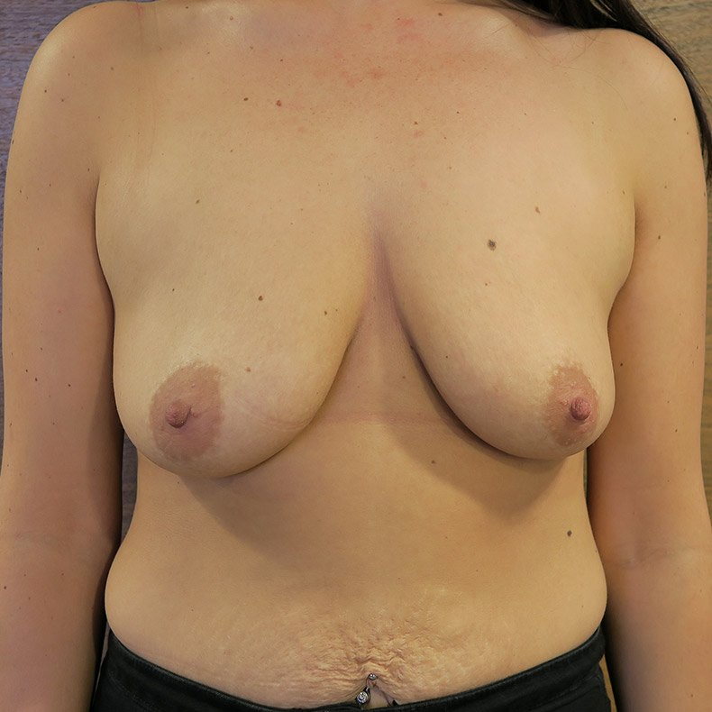 Breast Lift – with implants
